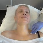 Kiedy powinienem zobaczyć się z dermatologiem estetycznym?