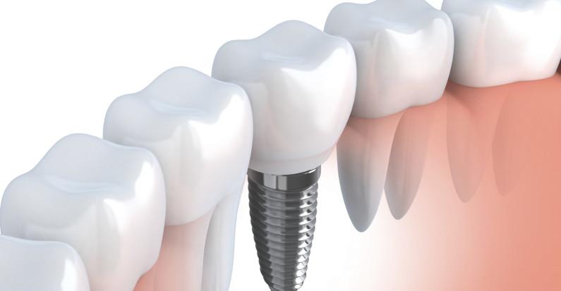Implanty zębowe a może inne sposoby na uratowanie zęba?